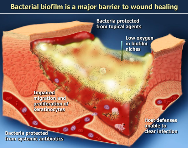 An overview of the normal skin healing process